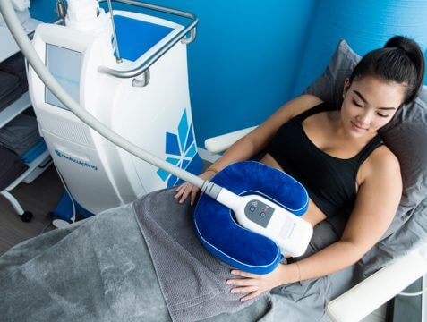 Image result for coolsculpting treatment